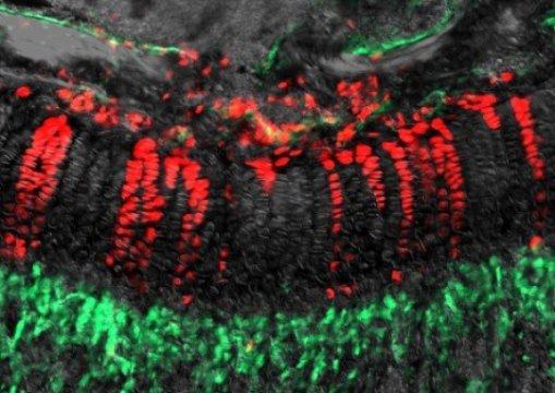 Стволовые клетки скелета